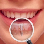 dental care cache valley