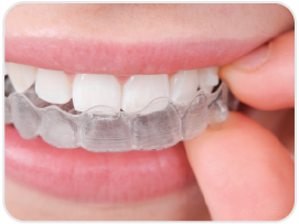 Invisalign richmond utah